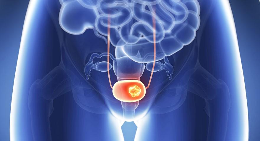 Лечение рака мочевого пузыря за рубежом