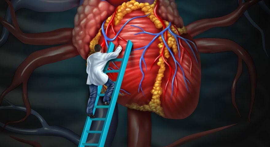 Сердечно-сосудистое лечение